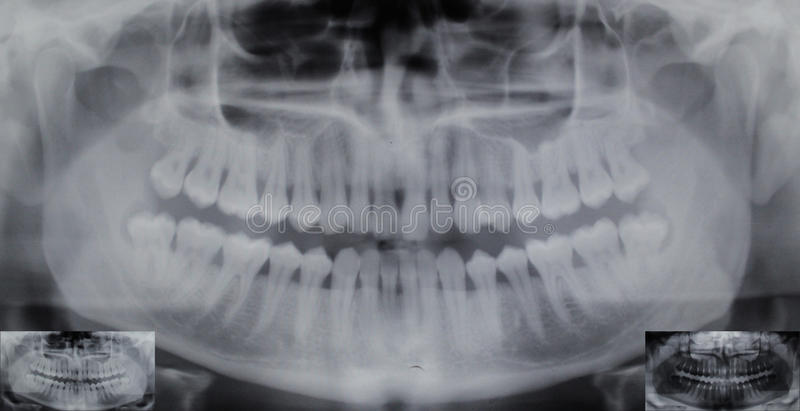 Raio X dental panorâmico - 32 dentes - sabedoria 4 fotos de stock royalty free