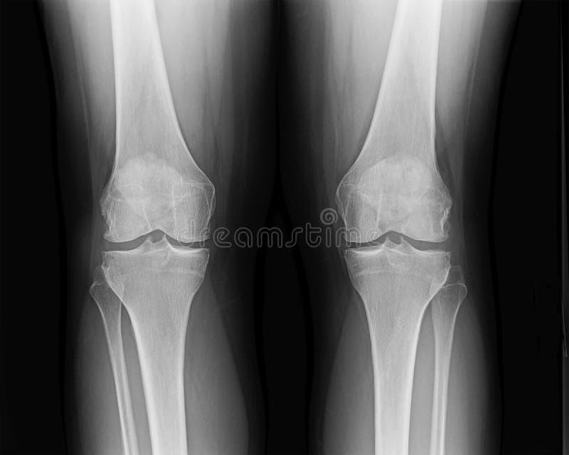 Raio X dianteiro da articulação do joelho da fêmea madura com osteodistrofia imagens de stock royalty free