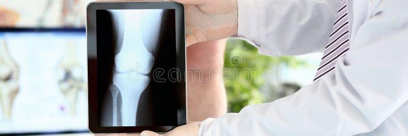Raio X disparado do pé imagem de stock