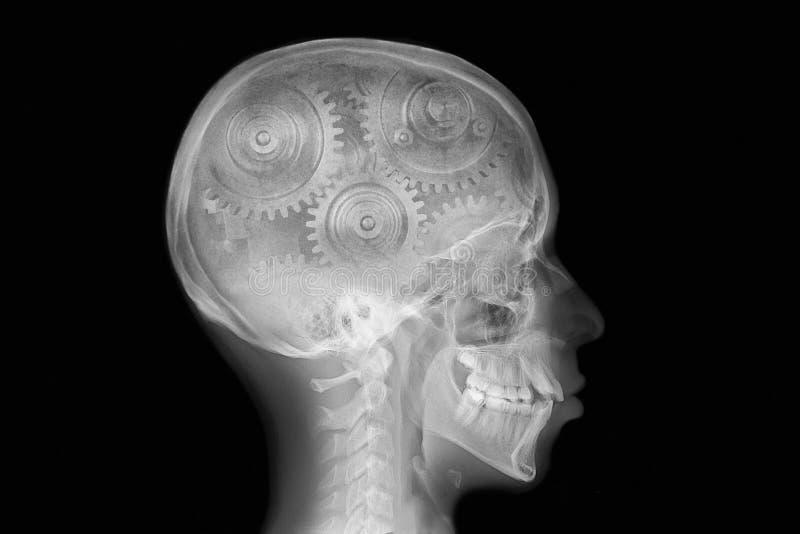 Raio X do crânio com engrenagem interna fotografia de stock