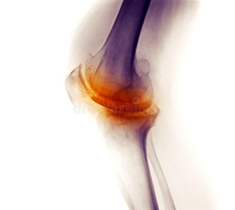 Raio X do joelho, osteodistrofia degenerative severa fotos de stock royalty free