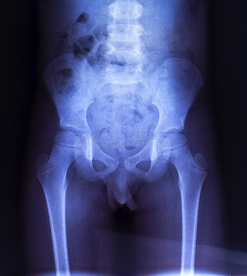 Raio X dos ossos pélvicos da criança fotos de stock