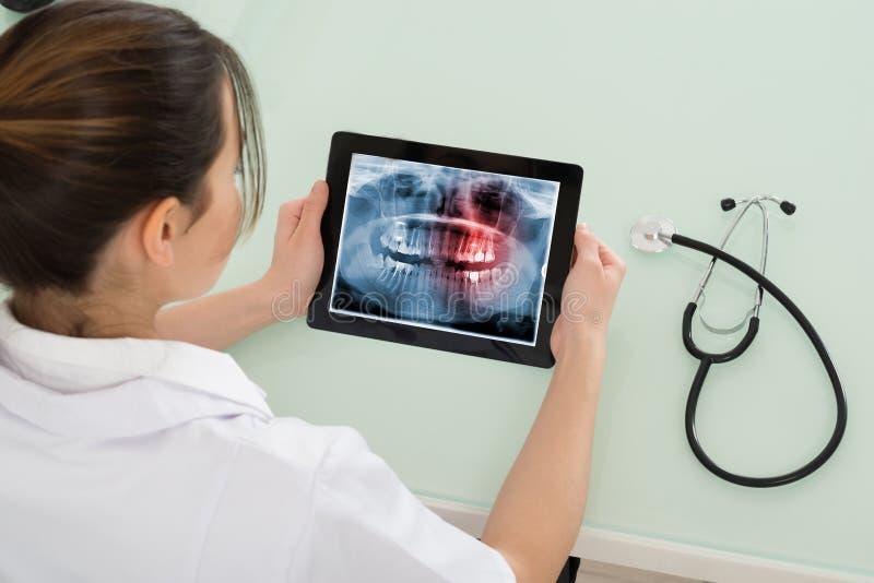Raio X fêmea do doutor Looking At Dental na tabuleta de Digitas imagem de stock