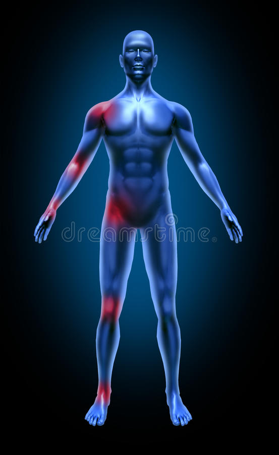 Raio X médico da inflamação da dor comum de corpo humano ilustração do vetor