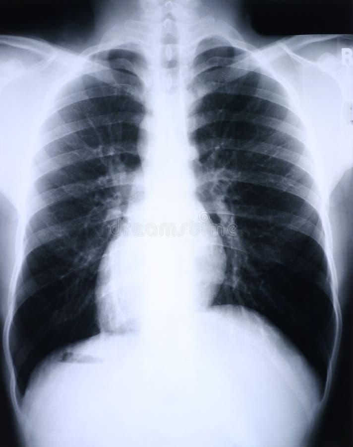 Raio X/pulmão ilustração royalty free