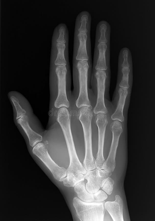 Raio X da mão