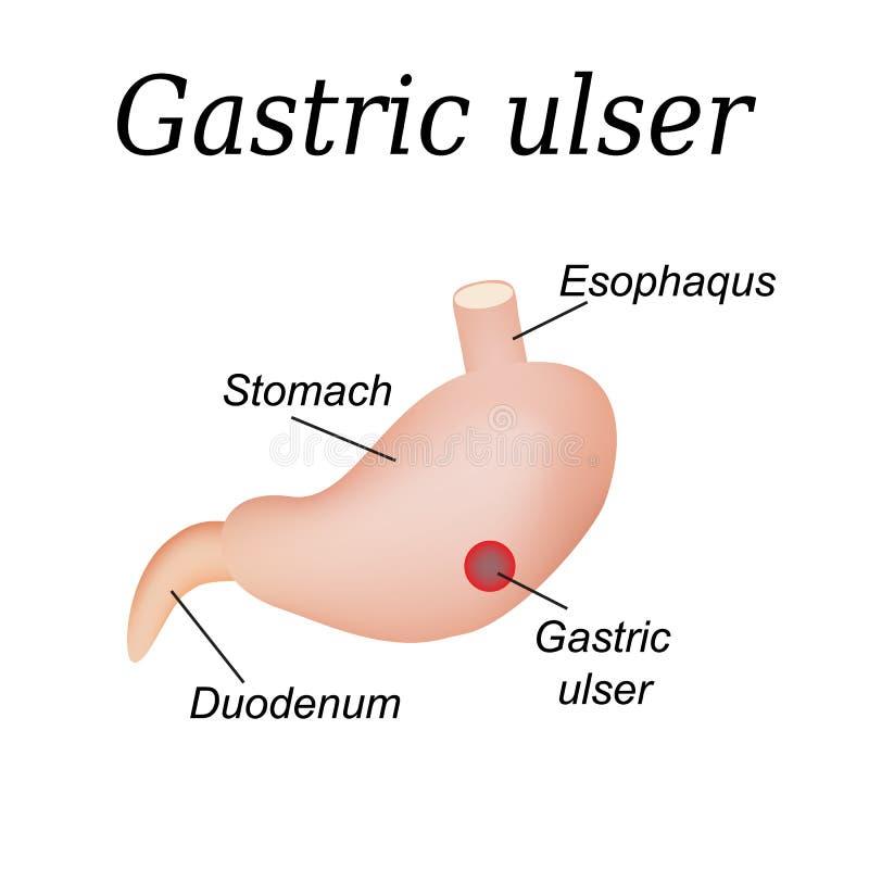 Rak żołądka wpływający Żołądkowy wrzód wektor royalty ilustracja
