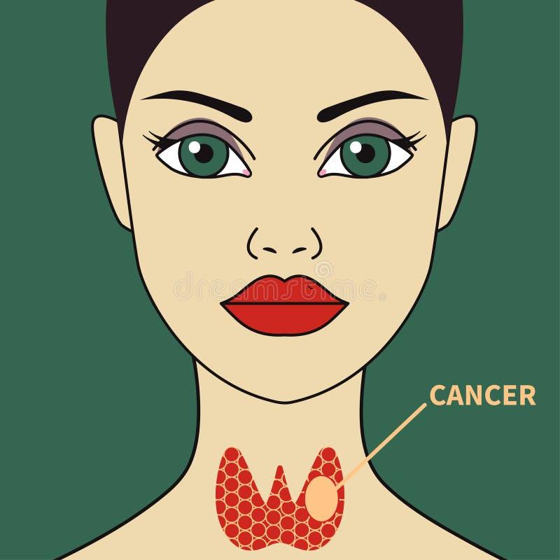Rak tarczycy w kobiecie ilustracja wektor