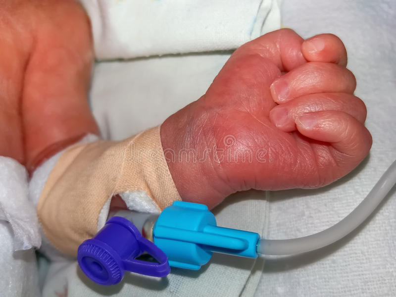 Rand intraveneuze catheter in de ader van pasgeboren babyhand stock foto