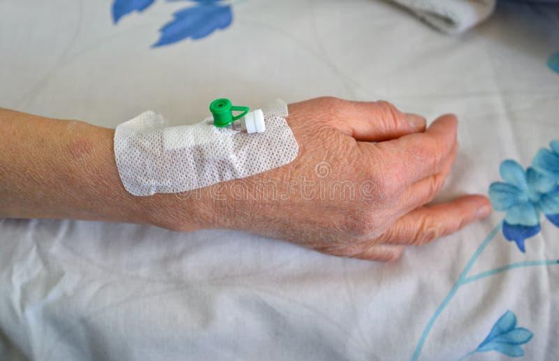 Rand intraveneuze catheter op lager wapen royalty-vrije stock afbeelding