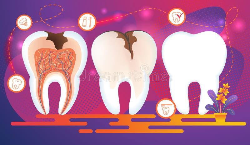Rangée des dents avec des problèmes dentaires En coupe illustration stock