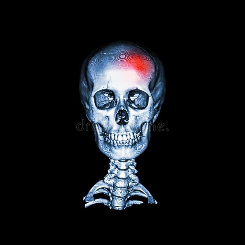 rappe Balayage de CT avec l'image 3D du crâne humain et de l'épine cervicale antérieur - view& postérieur x28 ; AP et x29 ; illustration de vecteur