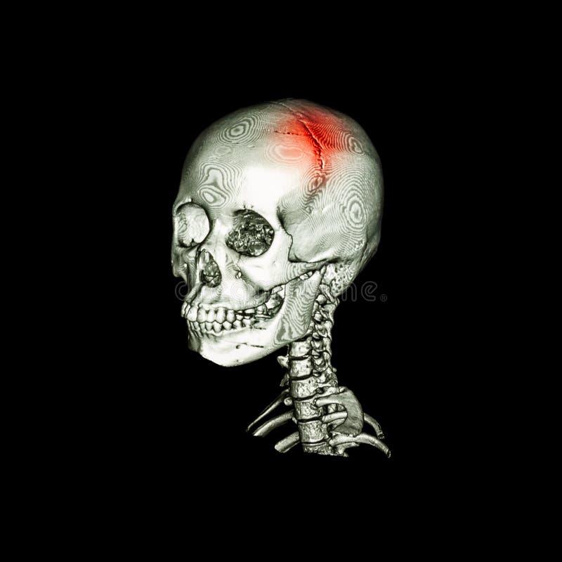 rappe Balayage de CT avec l'image 3D du crâne humain et de l'épine cervicale Vue oblique illustration stock