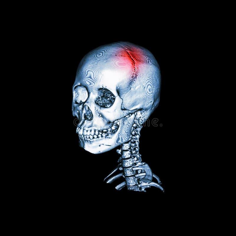 rappe Balayage de CT avec l'image 3D du crâne humain et de l'épine cervicale Vue oblique illustration libre de droits