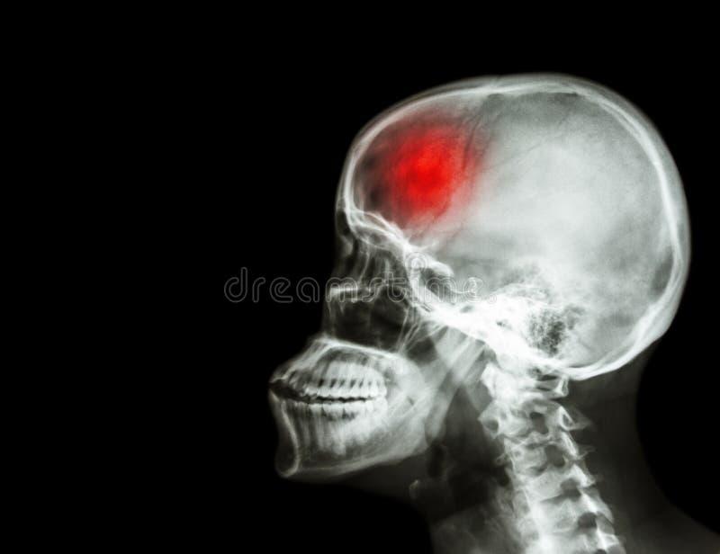 rappe filmez le crâne de rayon X et la vue latérale et la course d'épine cervicale accident cérébrovasculaire secteur vide sur le photos stock