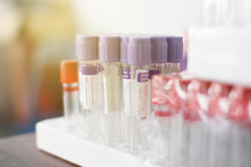 Rapporto di analisi del sangue di ematologia con i tubi della raccolta del campione di colore della lavanda tubi del sangue con l fotografia stock