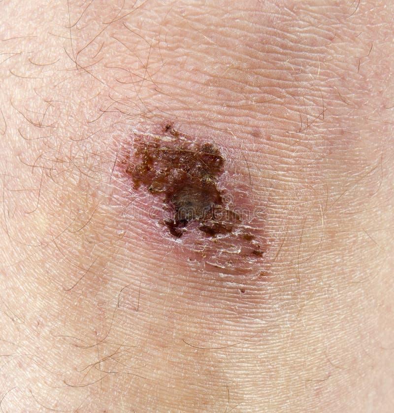 Rascado de la rodilla, sarna, cicatriz, detalle del primer de lesión foto de archivo
