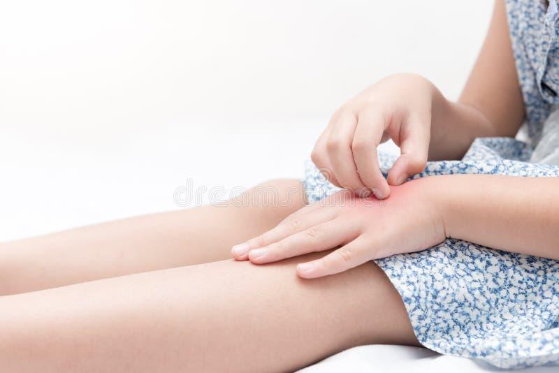 Rasguño asiático de la muchacha el picor con la mano debido a mordeduras de mosquito fotografía de archivo libre de regalías