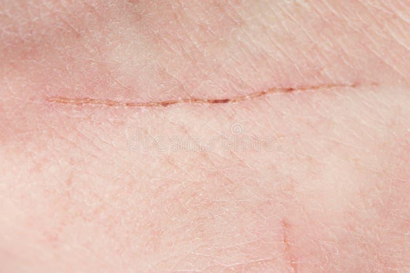 Rasguño largo del corte en piel humana fotos de archivo libres de regalías