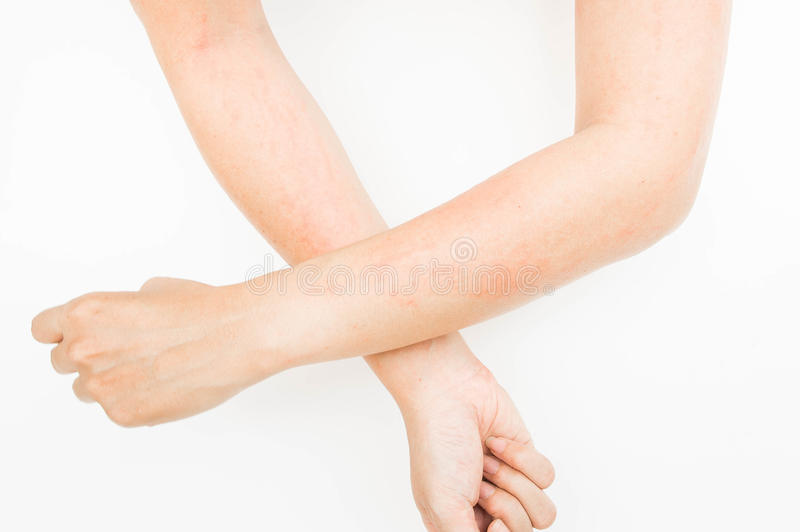 Rash allergy from touching arms ,eczema, Dermatitis. Rash allergy from touching arms ,eczema , Dermatitis royalty free stock photo