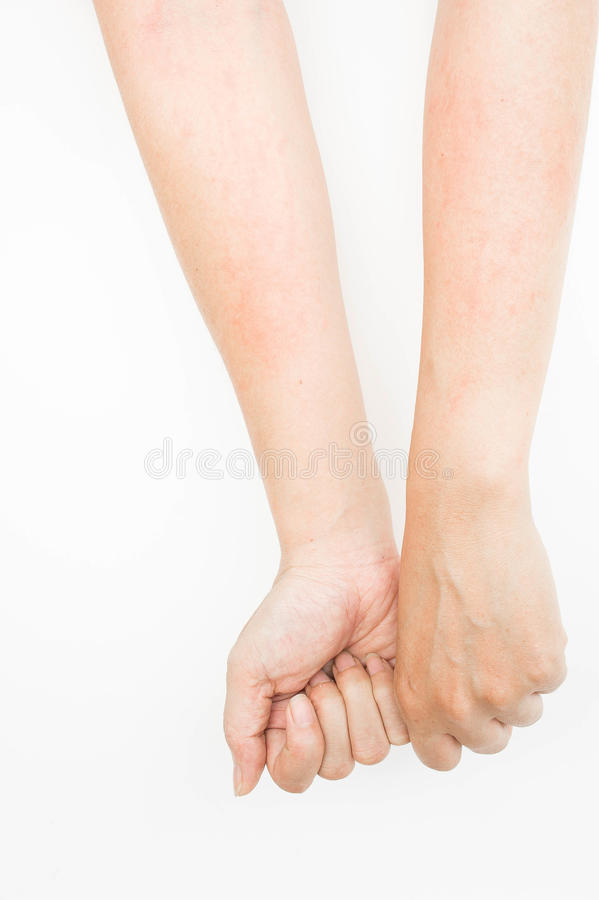 Rash allergy from touching arms ,eczema, Dermatitis. Rash allergy from touching arms ,eczema , Dermatitis royalty free stock images
