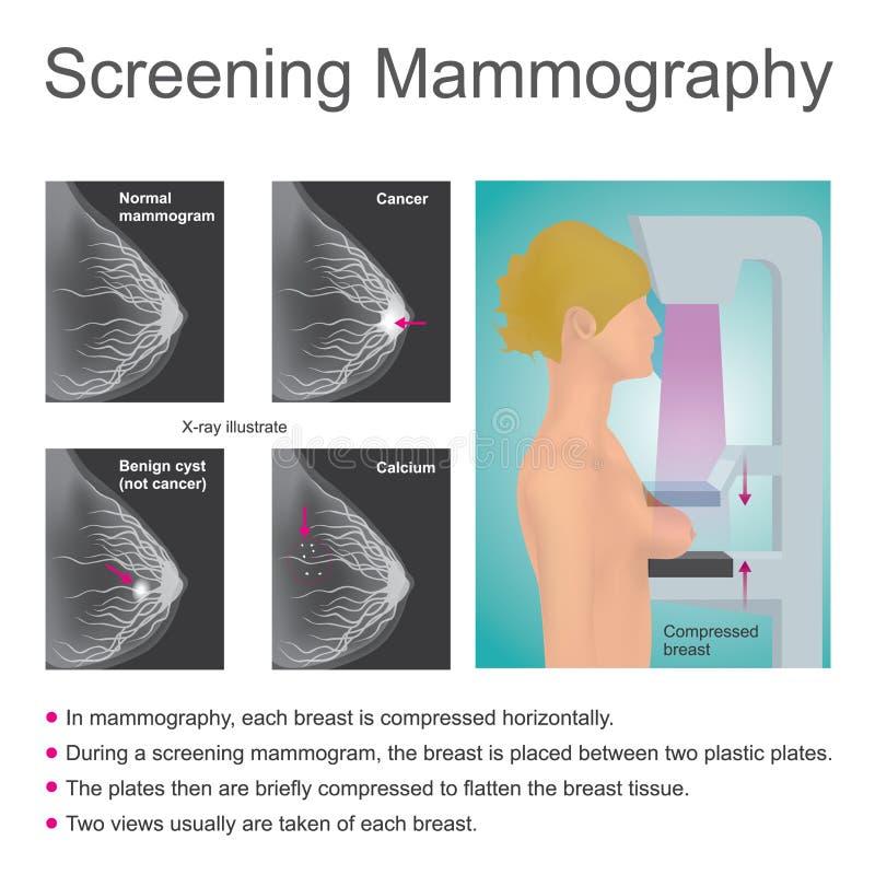 Rastreringsmammography stock illustrationer