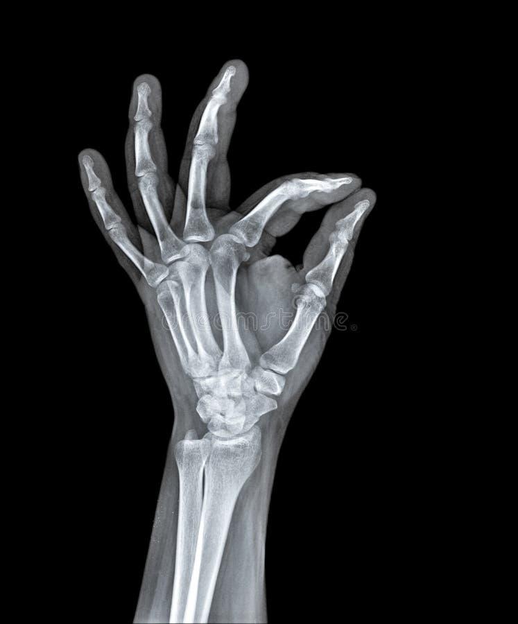 Rayo x de la mano humana imágenes de archivo libres de regalías