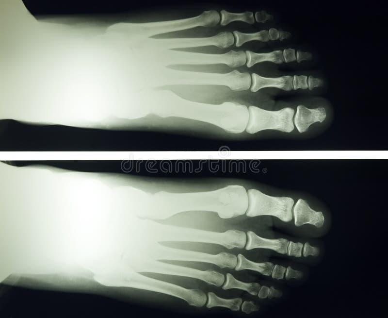 Rayo del pie x imagen de archivo