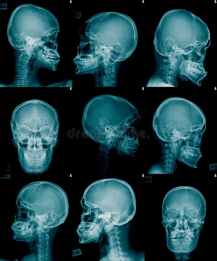 Rayon X AP de crâne de collection et vue latérale photos stock