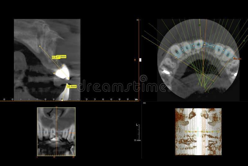 Rayon X 3D dentaire des dents illustration de vecteur