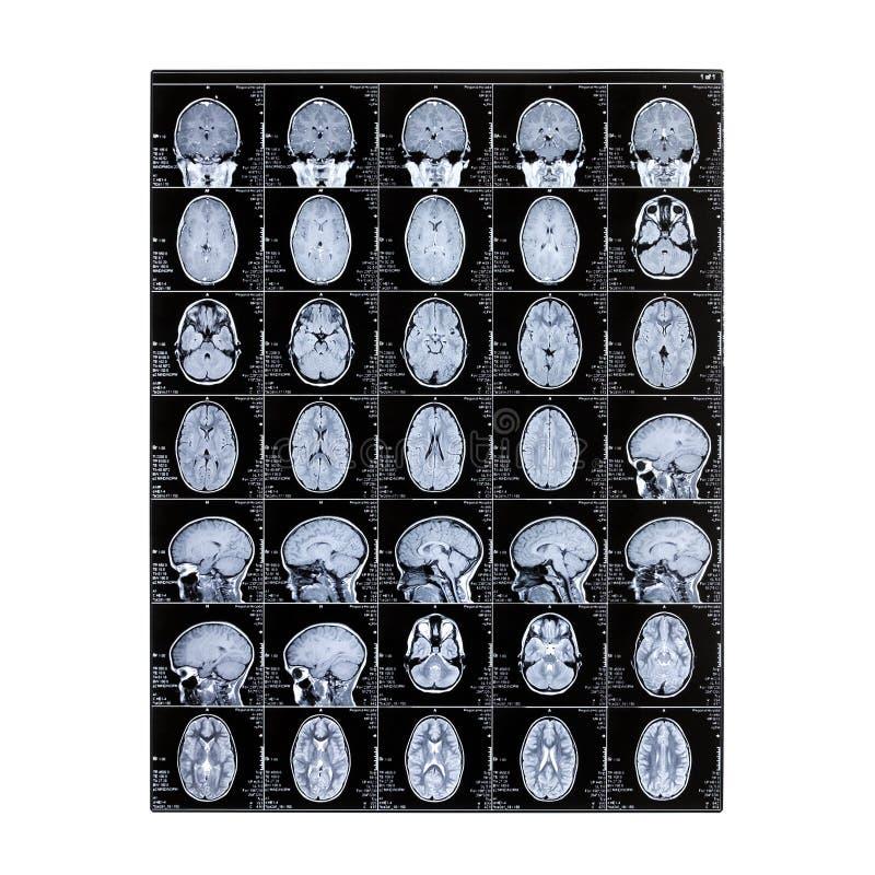 Rayon X d'isolement de la tête d'un enfant Formation image de résonance magnétique Image de rayon X du cerveau Jour du radiologue photos stock