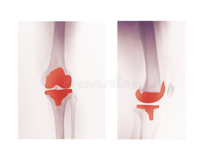 Rayon X d'un remplacement de genou images stock