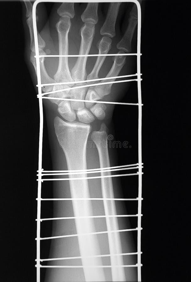 Rayon X de bras distal avec l'immobilisation provisoire images stock