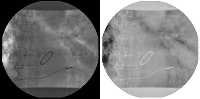Rayon X de coeur avec deux deux avances de stimulateur de cavité dans l'oreillette gauche et le ventricule et ombre de valvule mi photo libre de droits