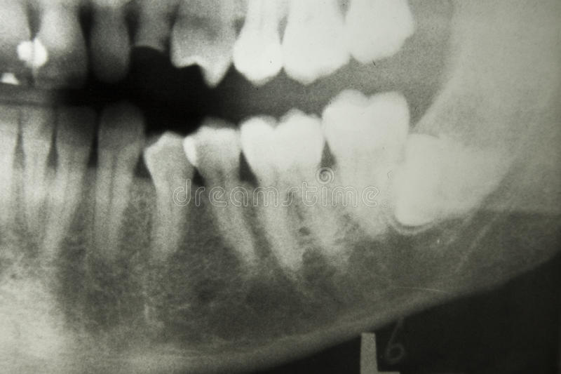 Rayon de X dentaire photos libres de droits