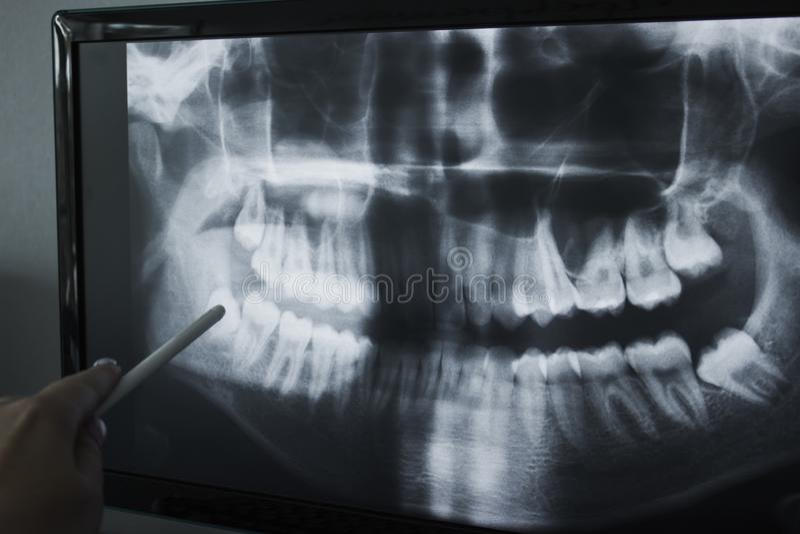 Rayon X de la mâchoire humaine photo stock
