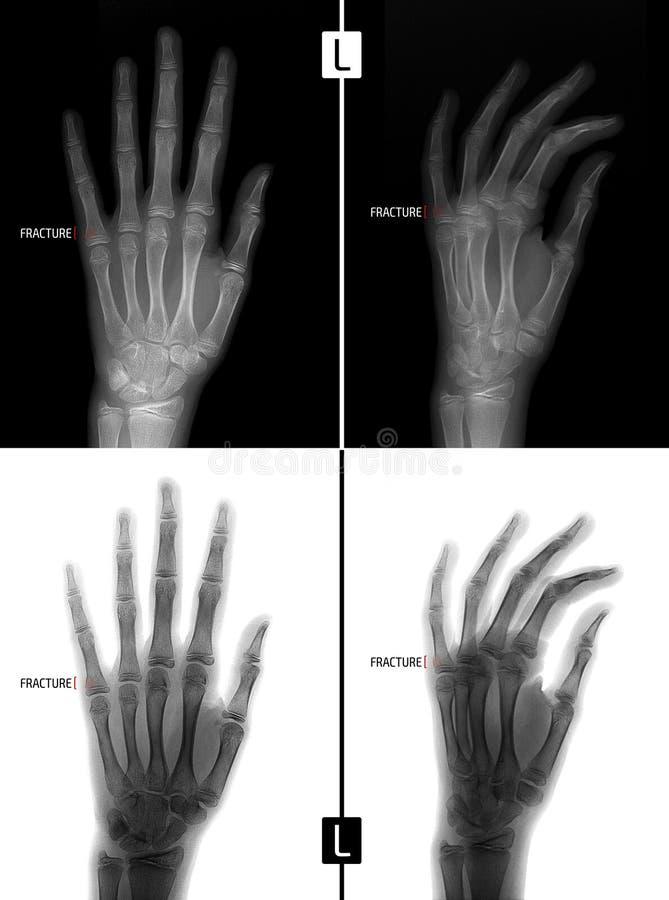 Rayon X de la main Montre la fracture de la base du phalange proximal du cinquième doigt de la main gauche repère positif image libre de droits