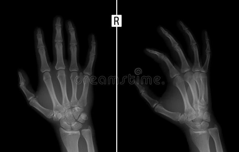 Rayon X de la main Montre la fracture de la base du phalange proximal du majeur de la main droite image libre de droits