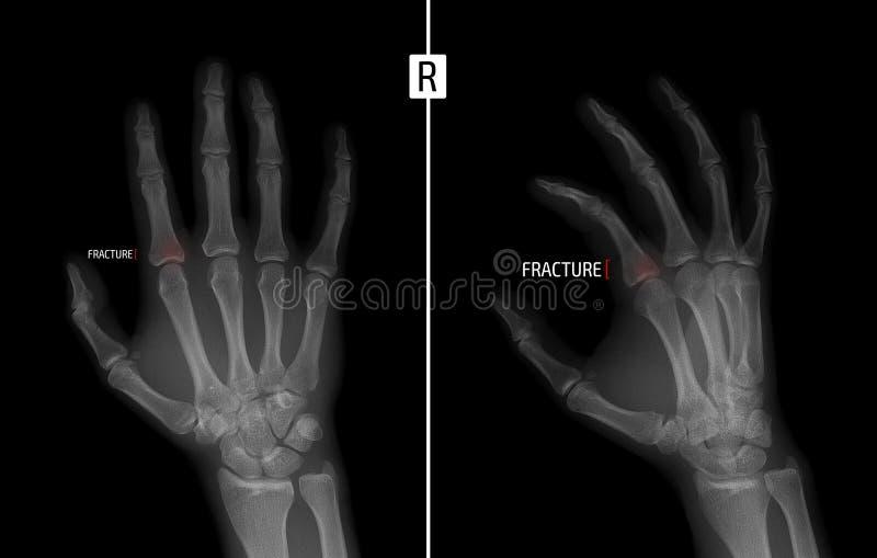 Rayon X de la main Montre la fracture de la base du phalange proximal du majeur de la main droite repère Négatif photo stock