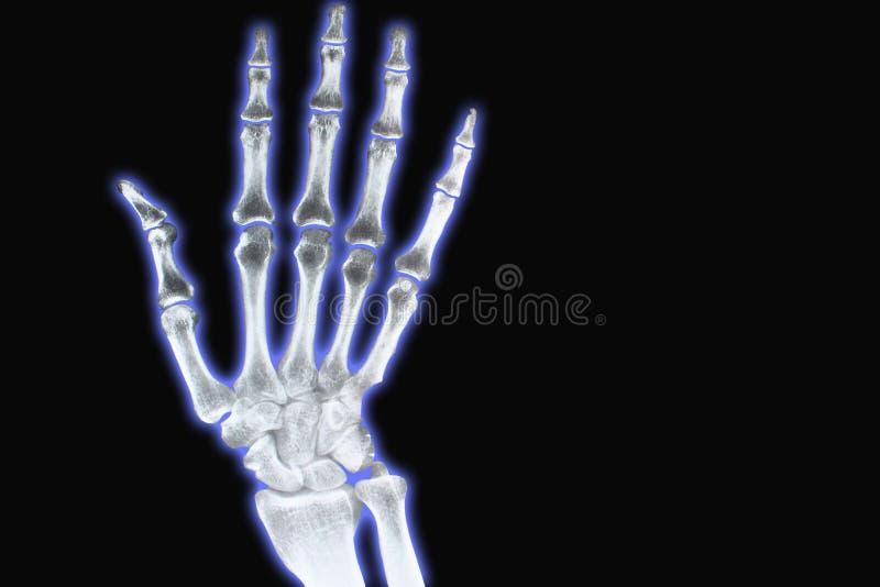 Rayon X de main avec le bleu image stock