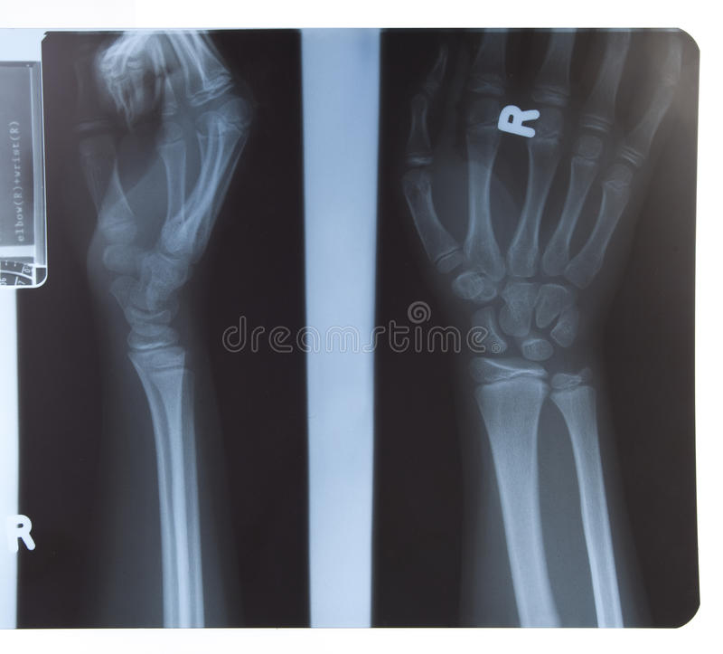 Rayon X de main et d'avant-bras image libre de droits