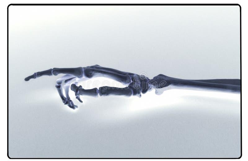 Rayon X de main et d'avant-bras humains photo stock