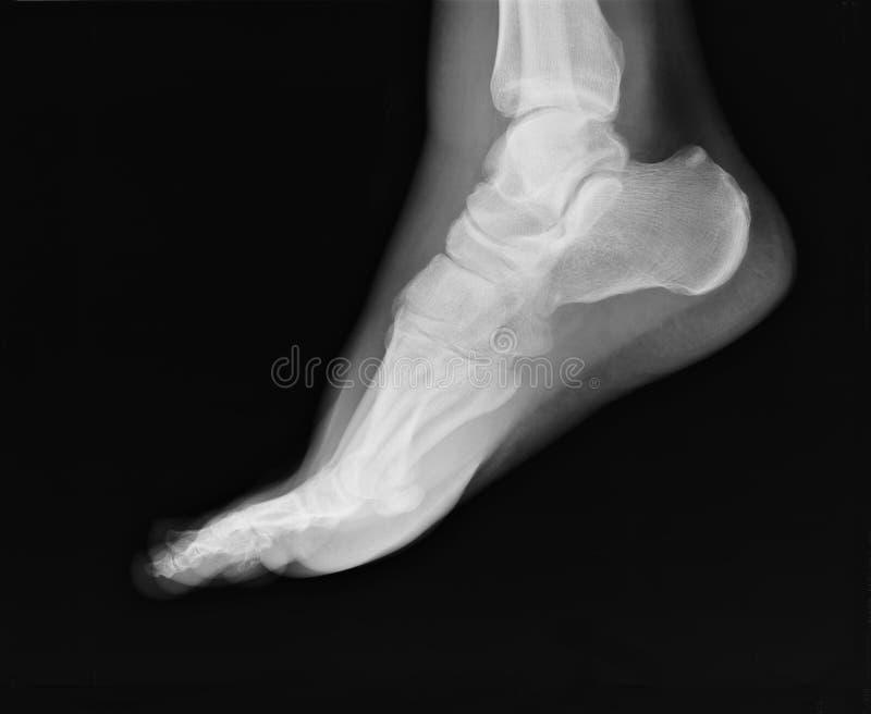Rayon X de pied image libre de droits