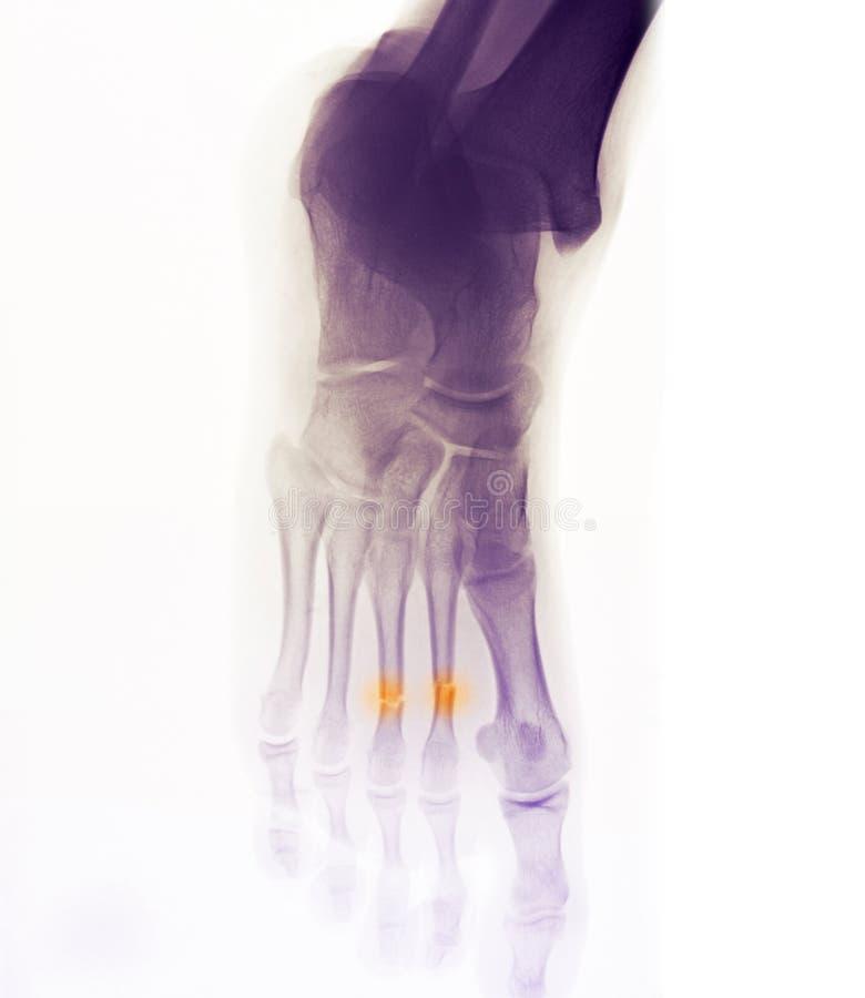 Rayon X de pied affichant la rupture photo stock