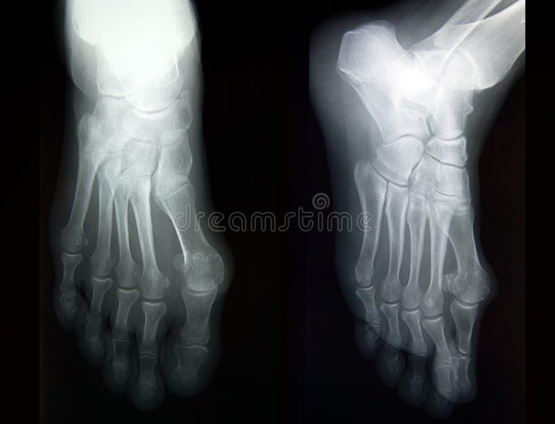 Rayon X de pied complet dans deux projections image libre de droits