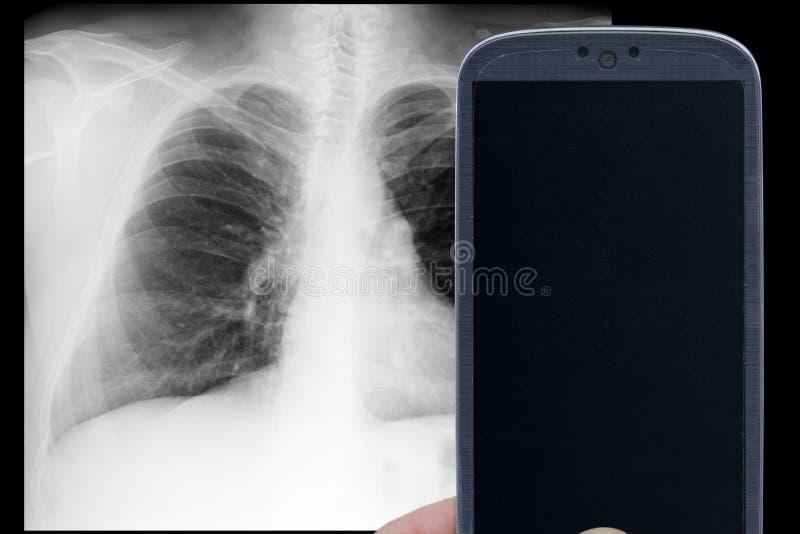 Rayon X de Smartphone images libres de droits