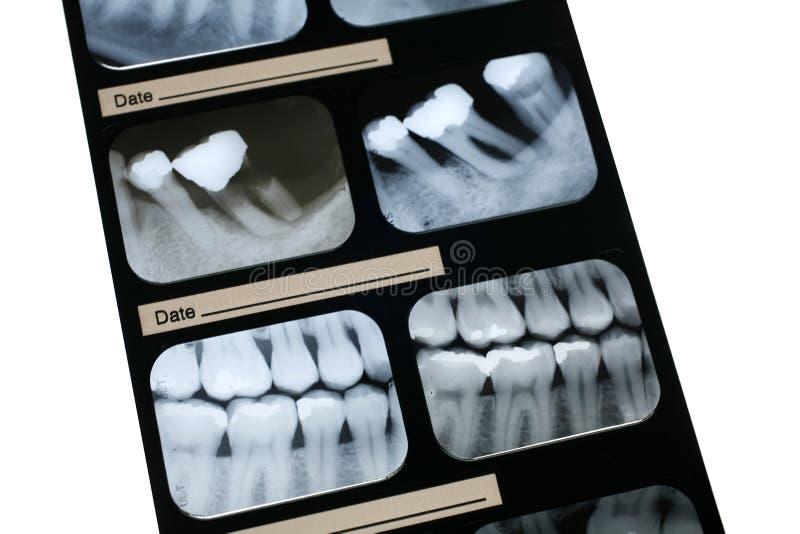 Rayon X dentaire photos libres de droits