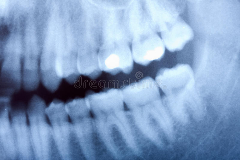 Rayon X dentaire image libre de droits