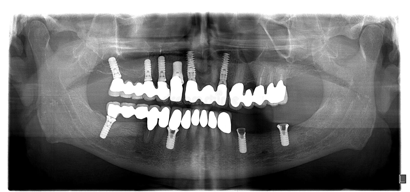 Rayon X dentaire avec des problèmes de periodontitis images libres de droits