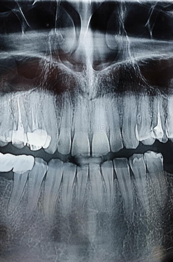Rayon X dentaire de rayon X images libres de droits